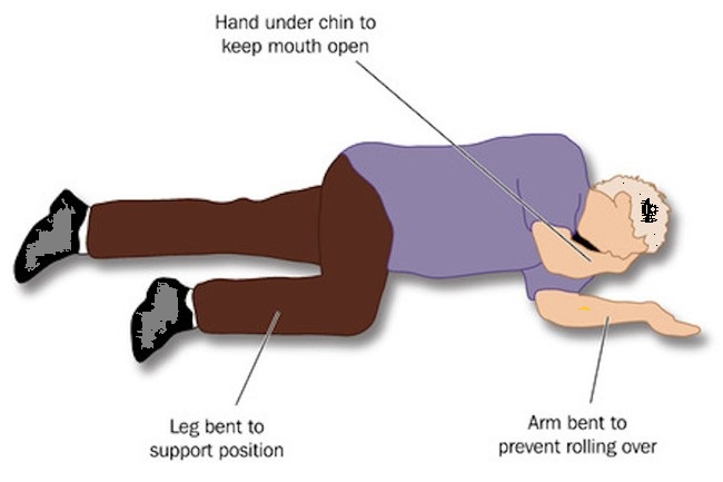 an example of recovery position